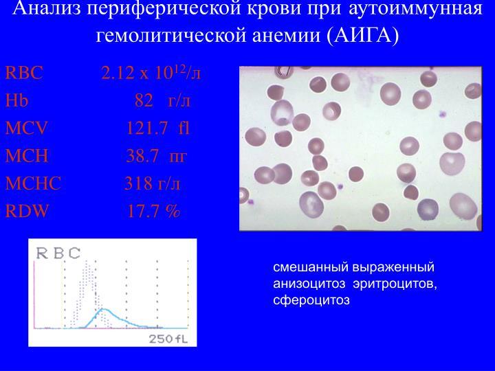 Анализ периферической крови при