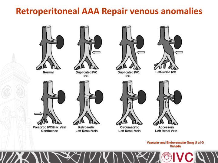 Retroperitoneal AAA Repair venous anomalies