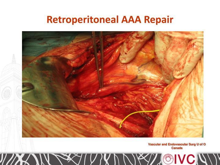Retroperitoneal AAA Repair