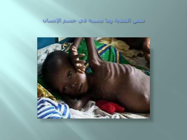 نقص التغذية وما يسببه في جسم الإنسان