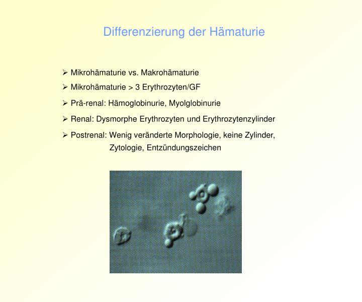 Differenzierung der Hämaturie