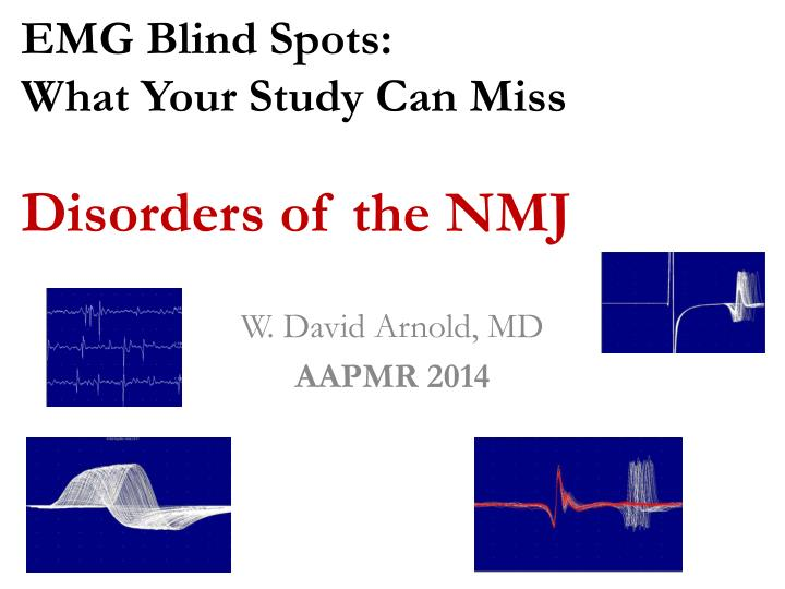 emg blind spots what your study can miss disorders of the nmj n.