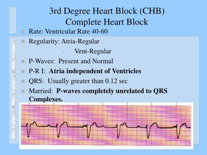 3rd Degree Heart Block (CHB)