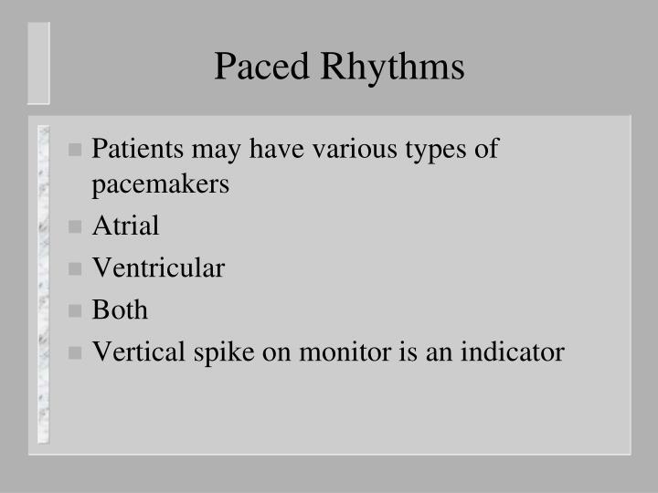 Paced Rhythms