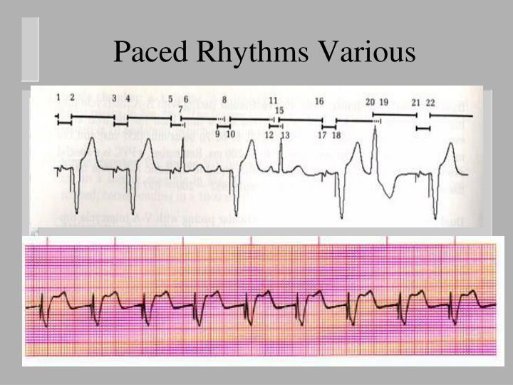 Paced Rhythms Various