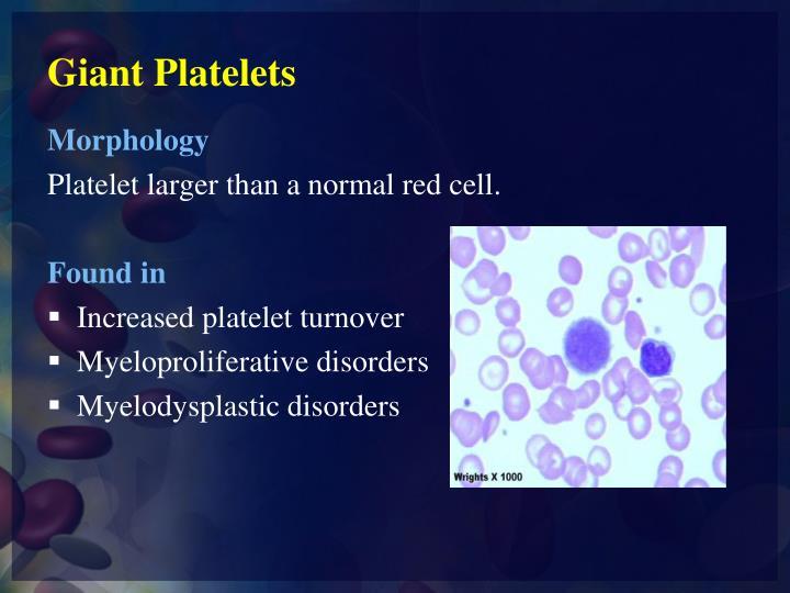 PPT - WBCs & PLT Abnormal Morphology PowerPoint ...