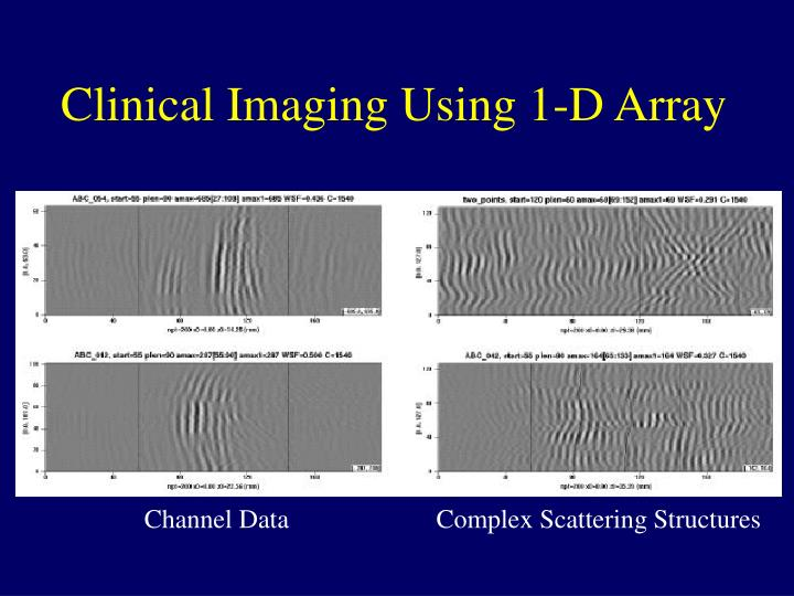 Clinical Imaging Using 1-D Array