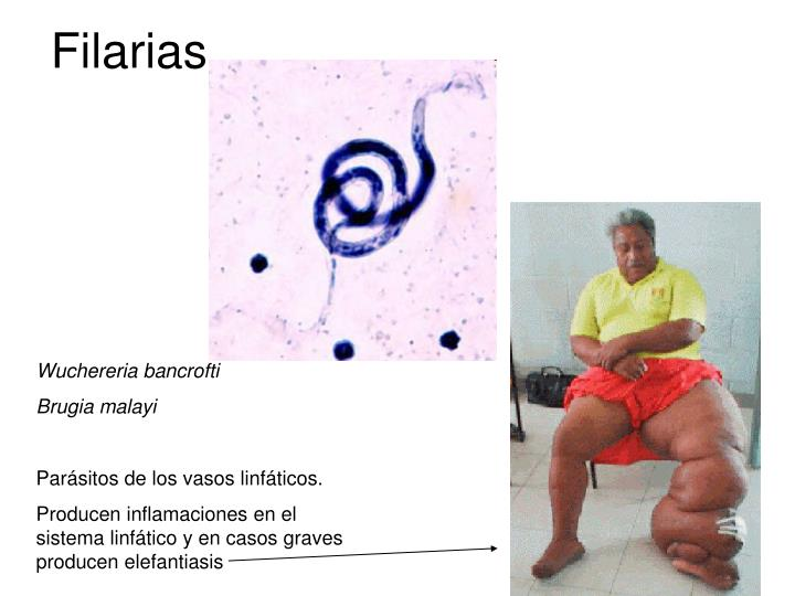 Filarias