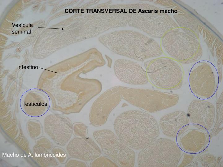 CORTE TRANSVERSAL DE Ascaris macho