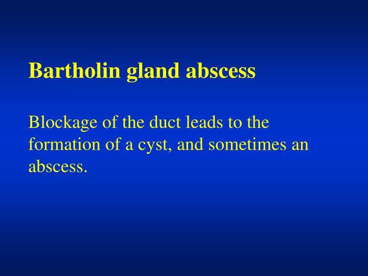 Bartholin gland abscess