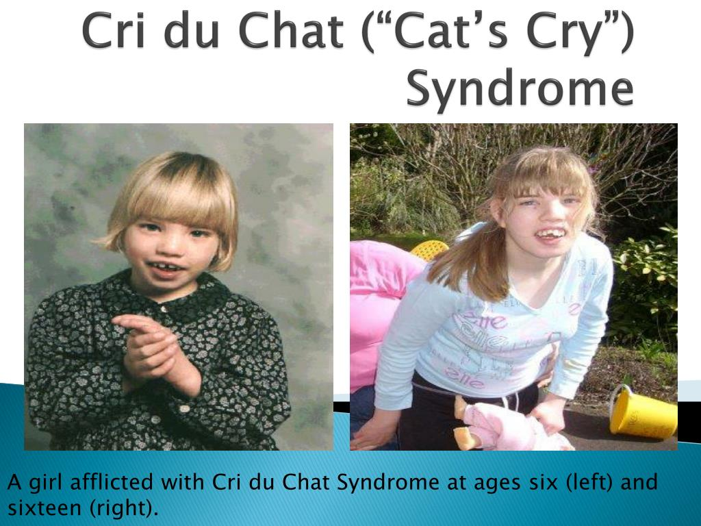 """ppt - cri du chat (""""cat's cry"""") syndrome powerpoint presentation"""