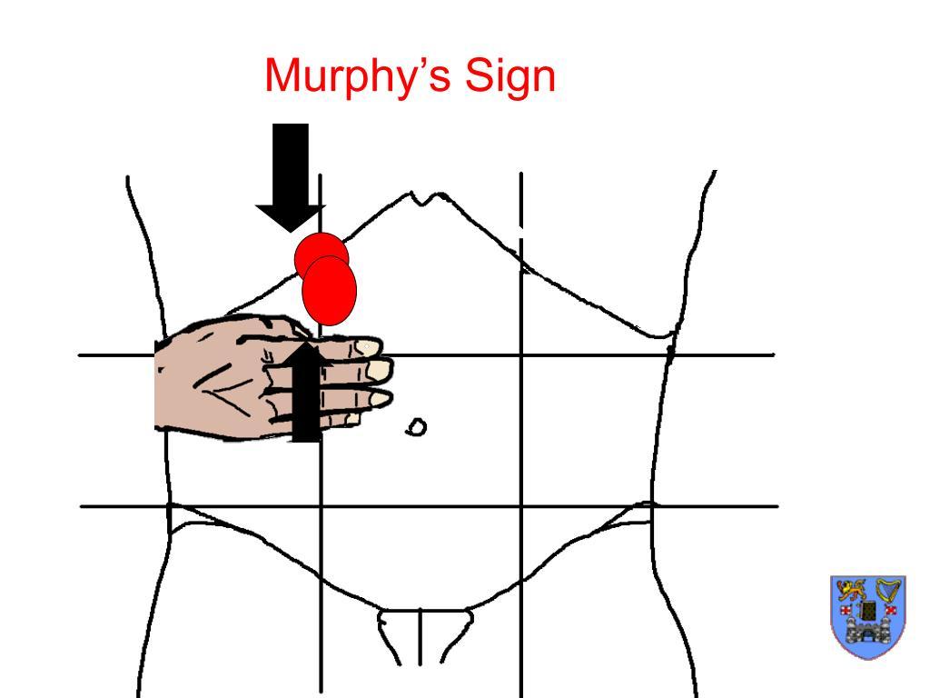 Murphy Zeichen