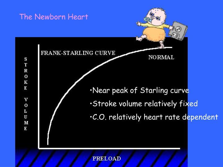 The Newborn Heart