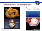 coronary sinus mv annuloplasty