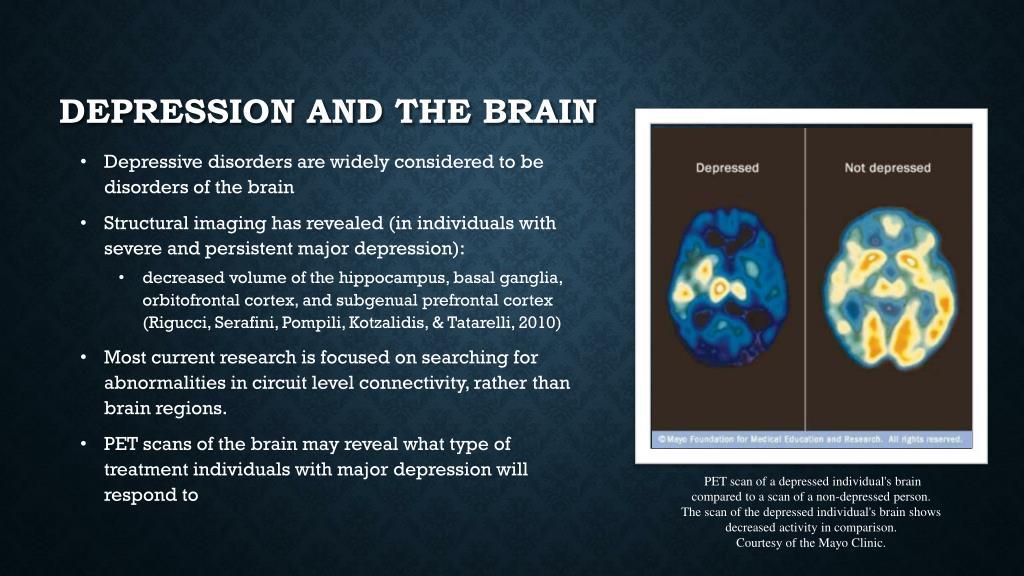 PPT - genetics of depression PowerPoint Presentation, free ...