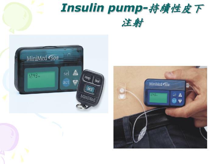 Insulin pump-