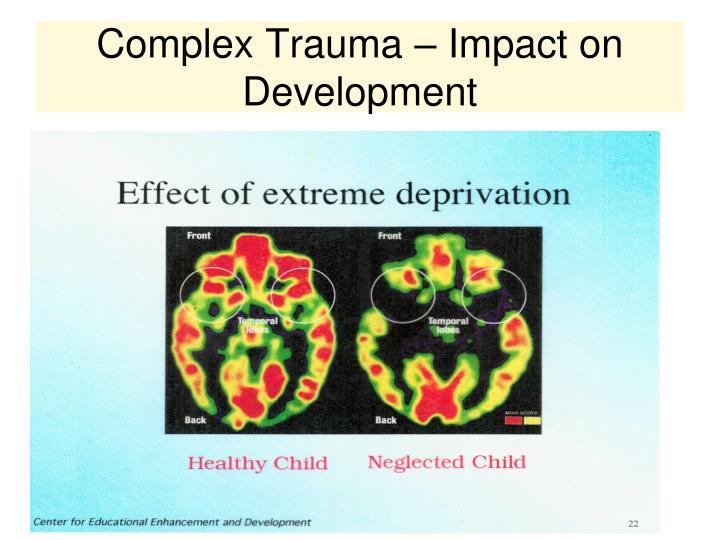 Complex Trauma – Impact on Development