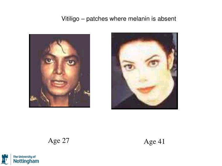 Vitiligo – patches where melanin is absent