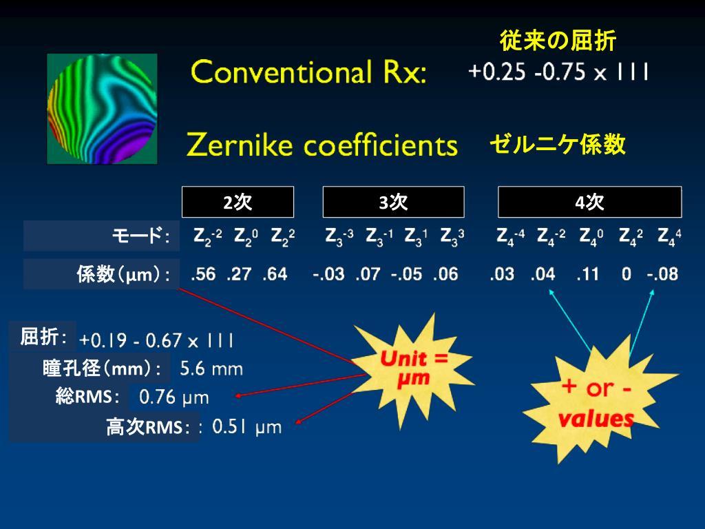 波面収差測定と涙液層 — 新しい評価方法 — - PowerPoint PPT Presentation