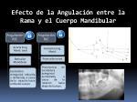 efecto de la a ngulaci n entre la rama y el cuerpo m andibular