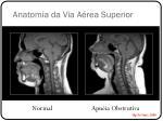 anatomia da via a rea superior