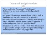 crown and bridge procedure1