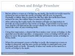 crown and bridge procedure2