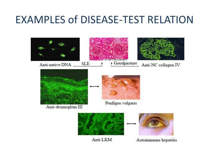 Autoimmune Disease Treated Naturally