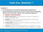 case one question 11