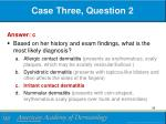 case three question 21