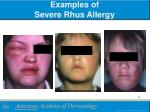 examples of severe rhus allergy