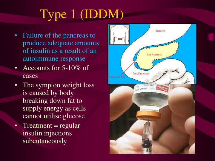 Failure of the pancreas to produce adequate amounts of insulin as a result of an autoimmune response