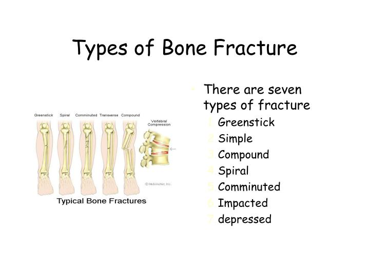 Ppt 06 Skeletal System C Bone Fractures Powerpoint Presentation