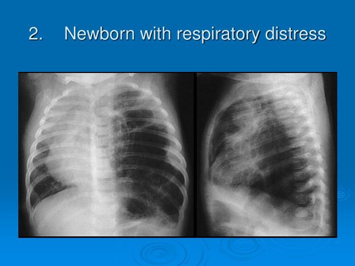 2 newborn with respiratory distress