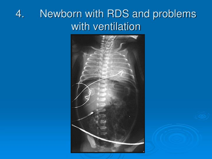 4. Newborn with RDS and problems with ventilation