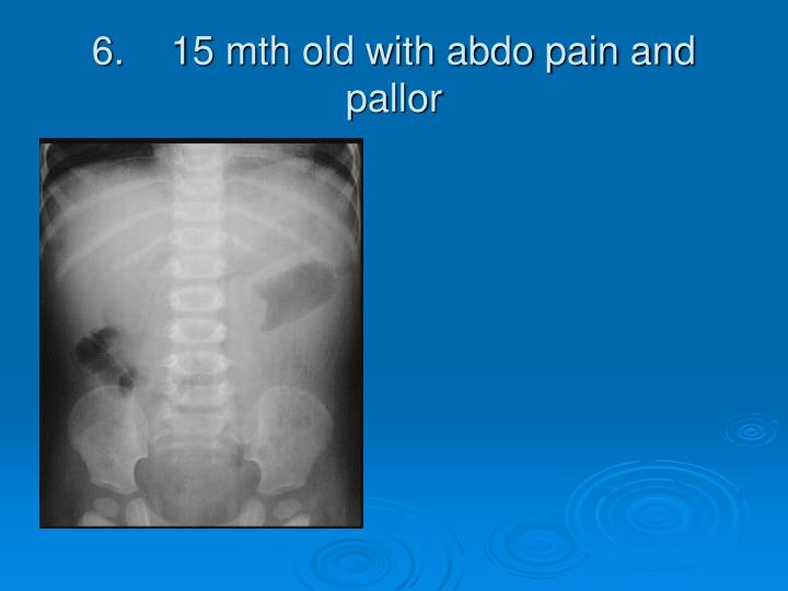 6.15 mth old with abdo pain and pallor