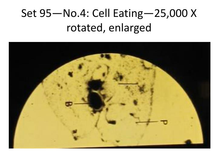 Set 95—No.4: Cell Eating—25,000 X rotated, enlarged
