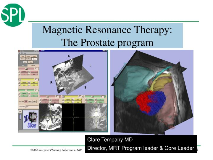 PPT - Magnetic Resonance Therapy: The Prostate program