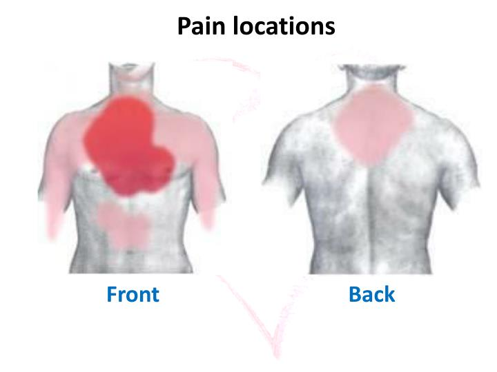 Pain locations