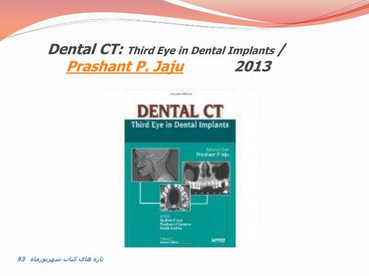 Dental CT: