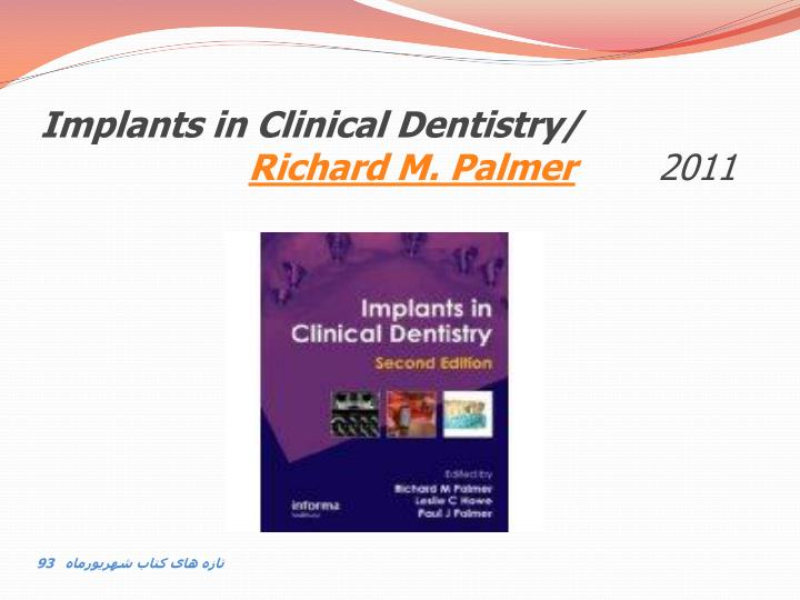 Implants in clinical dentistry richard m palmer 2011