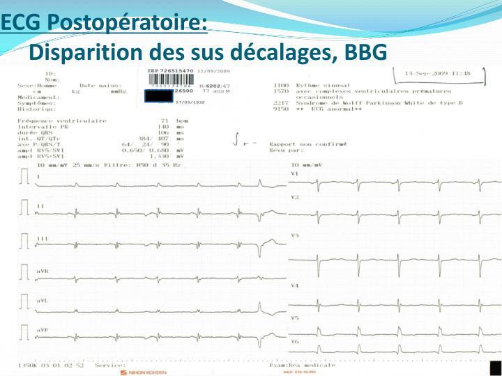 ECG Postopératoire: