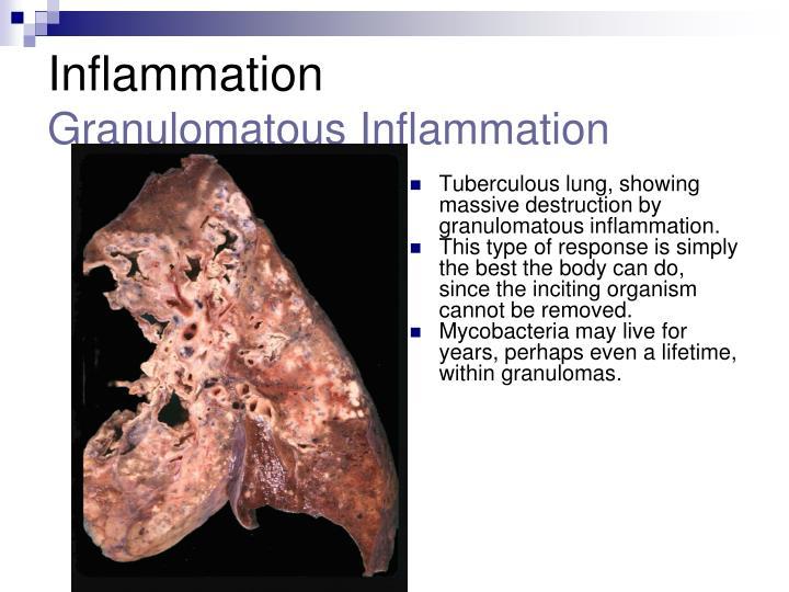 Tuberculous lung, showing massive destruction by granulomatous inflammation.