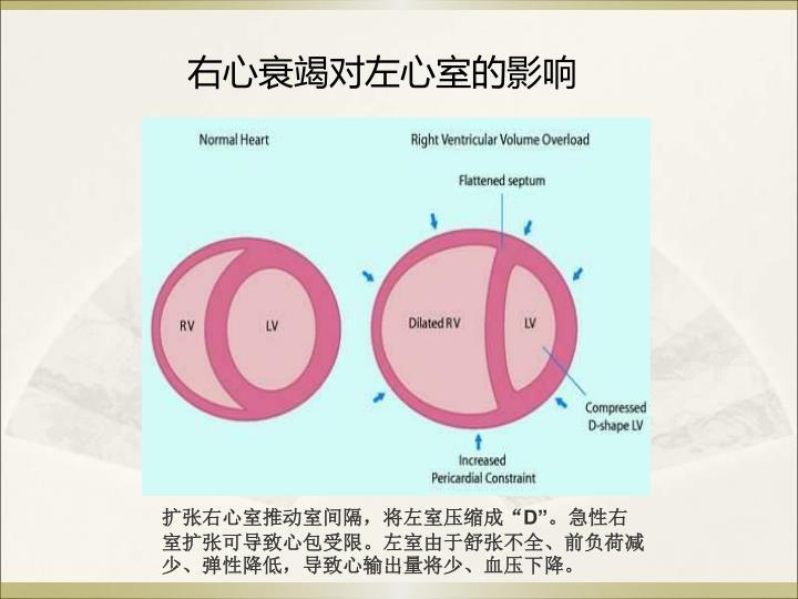右心衰竭对左心室的影响