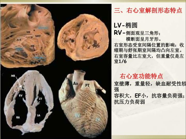 三、右心室解剖形态特点