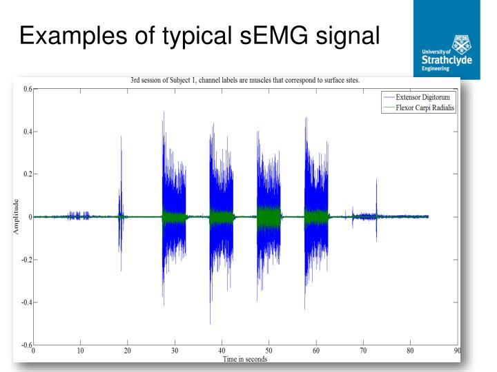 Examples of typical sEMG signal
