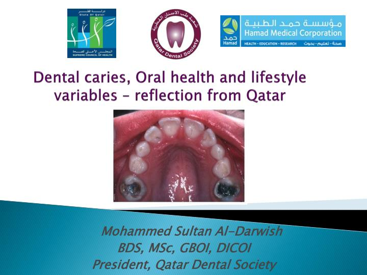 dental caries oral health and lifestyle variables reflection from qatar n.