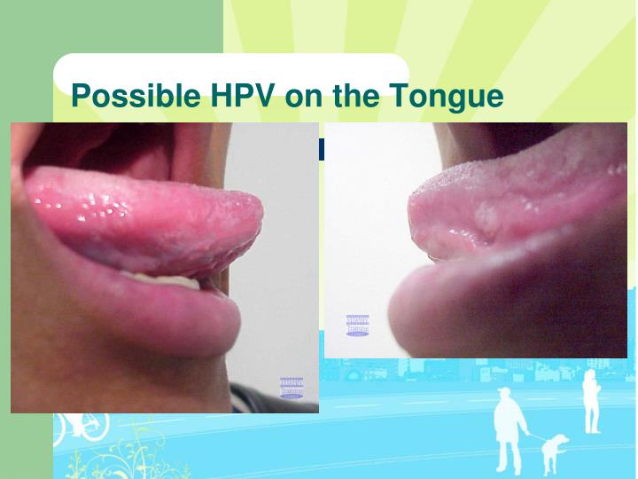Possible HPV on the Tongue