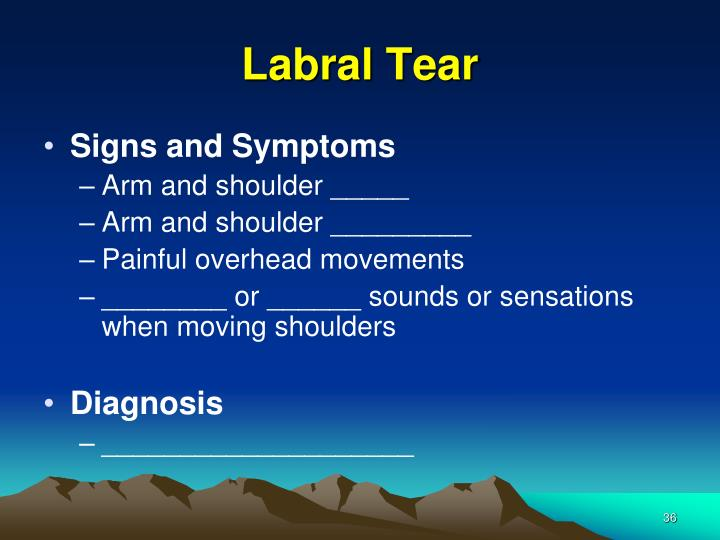 Labral Tear