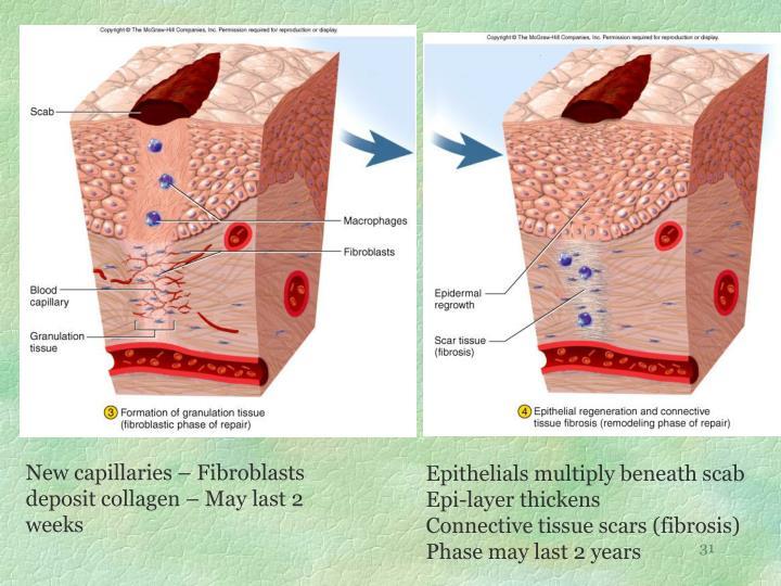 New capillaries – Fibroblasts deposit collagen – May last 2 weeks